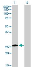 Western blot - Syntaxin 8 antibody (ab102798)