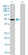Western blot - CTBS antibody (ab102801)
