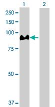 Western blot - Aconitase 1 antibody (ab102803)