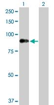 Western blot - Dystrophia myotonica protein kinase antibody (ab102804)