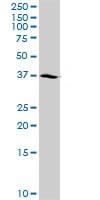 Western blot - NSDHL antibody (ab102805)