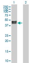Western blot - CA12 antibody (ab102809)