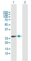 Western blot - Anti-TMA16 antibody (ab102813)