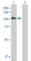 Western blot - GAA antibody (ab102815)