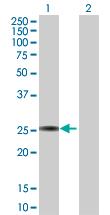 Western blot - GSTA3 antibody (ab102816)