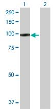 Western blot - IFI35 antibody (ab102818)