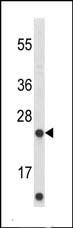 Western blot - ABHD14B antibody (ab102950)