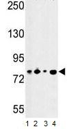 Western blot - CSRP2BP antibody (ab103037)