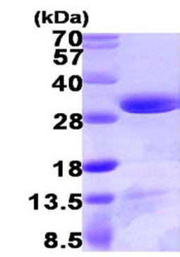 SDS-PAGE - DCUN1D1 protein (ab103056)