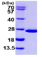 SDS-PAGE - NUDT16 protein (ab103059)