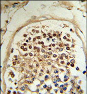Immunohistochemistry (Formalin/PFA-fixed paraffin-embedded sections) - HCCA2 antibody (ab103109)