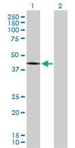 Western blot - PCYT1A antibody (ab103140)