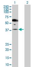 Western blot - PGA5 antibody (ab103141)