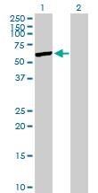 Western blot - SHMT1 antibody (ab103143)