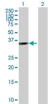 Western blot - Parvin gamma antibody (ab103146)