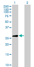 Western blot - Elastase 3A antibody (ab103149)