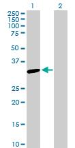 Western blot - SNAP29 antibody (ab103150)
