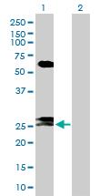 Western blot - FAM3B antibody (ab103154)