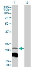 Western blot - IGLL1 antibody (ab103156)