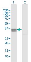 Western blot - PPA2 antibody (ab103158)