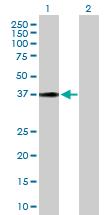 Western blot - HSD17B2 antibody (ab103161)