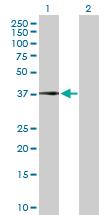 Western blot - CFHL1 antibody (ab103162)