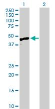 Western blot - HYAL3 antibody (ab103163)