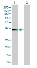 Western blot - FBP1 antibody (ab103165)