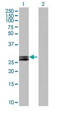 Western blot - HLA DOB antibody (ab103168)