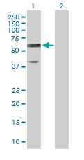 Western blot - Reticulon 2 antibody (ab103170)