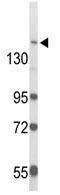 Western blot - RAB3GAP2 antibody (ab103244)