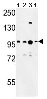 Western blot - Ctip1 antibody (ab103247)