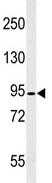 Western blot - Calpain 3 antibody (ab103250)