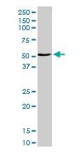 Western blot - ZNF238 antibody (ab103292)