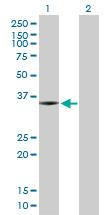 Western blot - SNX11 antibody (ab103293)