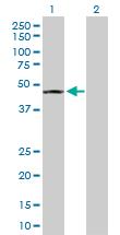 Western blot - SEPT5 antibody (ab103294)