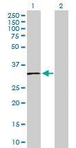Western blot - SLC14A1 antibody (ab103295)