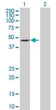 Western blot - Deptor antibody (ab103298)
