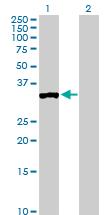 Western blot - Protein phosphatase 1 inhibitor 3C antibody (ab103299)