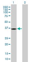 Western blot - Protein phosphatase 1 inhibitor 3C antibody (ab103300)