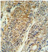 Immunohistochemistry (Formalin/PFA-fixed paraffin-embedded sections) - PYCR1 antibody (ab103314)