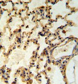 Immunohistochemistry (Formalin/PFA-fixed paraffin-embedded sections) - IMMP2L antibody (ab103326)