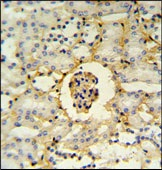 Immunohistochemistry (Formalin/PFA-fixed paraffin-embedded sections) - PMPCB antibody (ab103343)