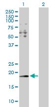 Western blot - HYI antibody (ab103362)