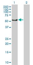 Western blot - SNX4 antibody (ab103363)