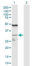 Western blot - WDR61 antibody (ab103366)