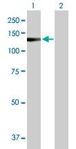 Western blot - eEF1A2 binding protein  antibody (ab103368)