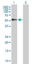 Western blot - CHRDL1 antibody (ab103369)