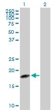 Western blot - C1orf19 antibody (ab103370)