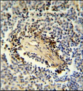 Immunohistochemistry (Formalin/PFA-fixed paraffin-embedded sections) - ARHGAP30 antibody (ab103402)
